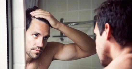 indices perte de cheveux Faites Vous Partie de ces 60% d'Hommes Qui Perdent Leurs Cheveux ?